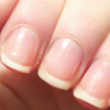 stop-nail-biting